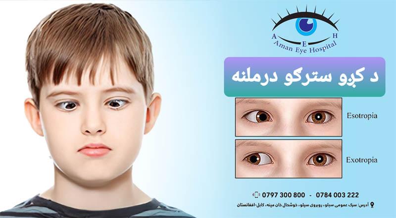 Treatment of Crooked Eyes