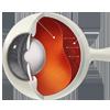 Retinal Detachment Surgery (P.P.V)
