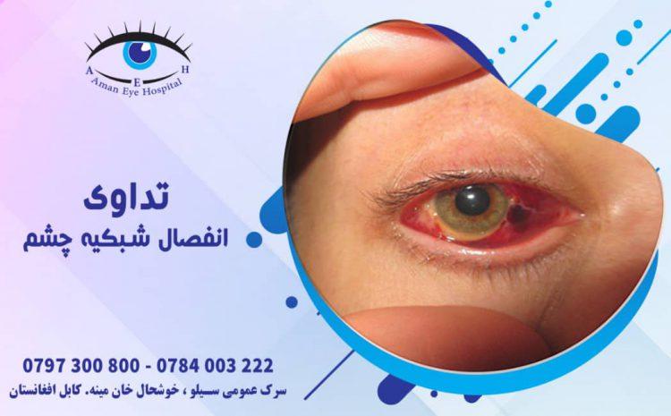 Retinal Detachment Treatment