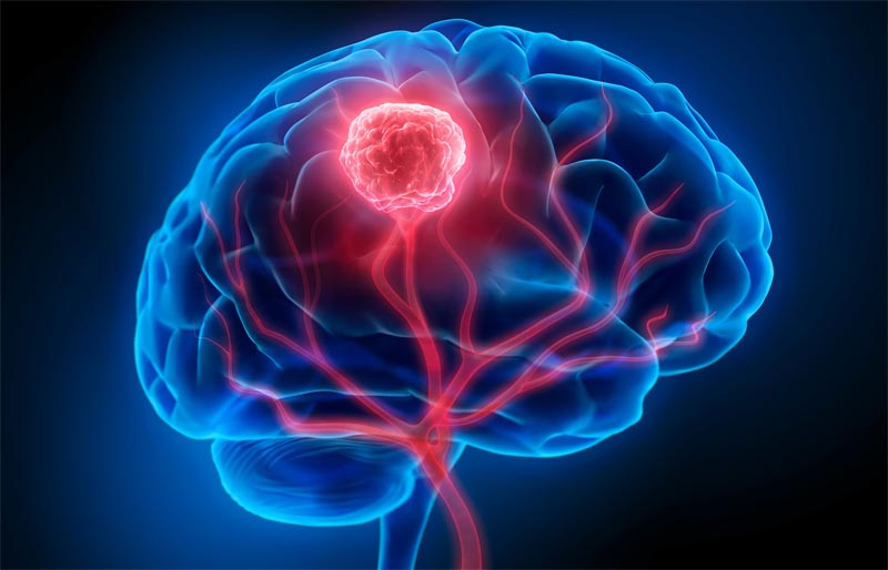 Tumors and Other Space Occupying Brain Lesions